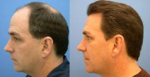 Best Hair Restoration Clinic Turkey, Best Hair Transplant Clinic Turkey