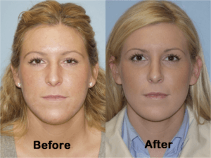Hairline Lowering Without Surgery Turkey, Lowering Hairline Without Surgery Turkey