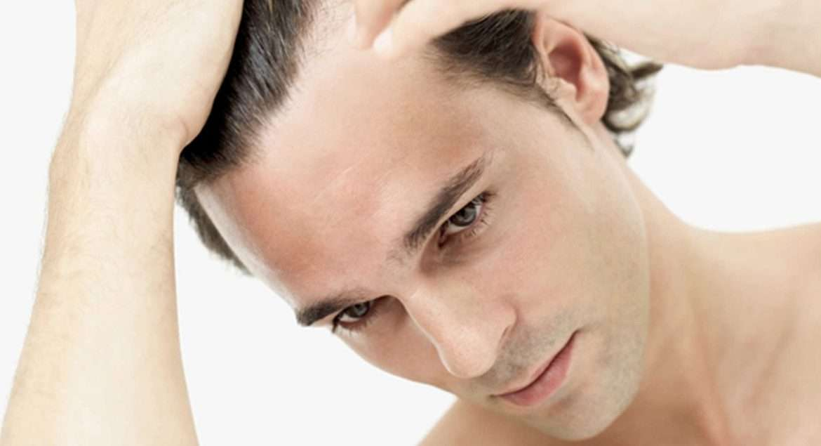 How to Prevent Men Hair Loss – Guide By ExpertHairTransplant