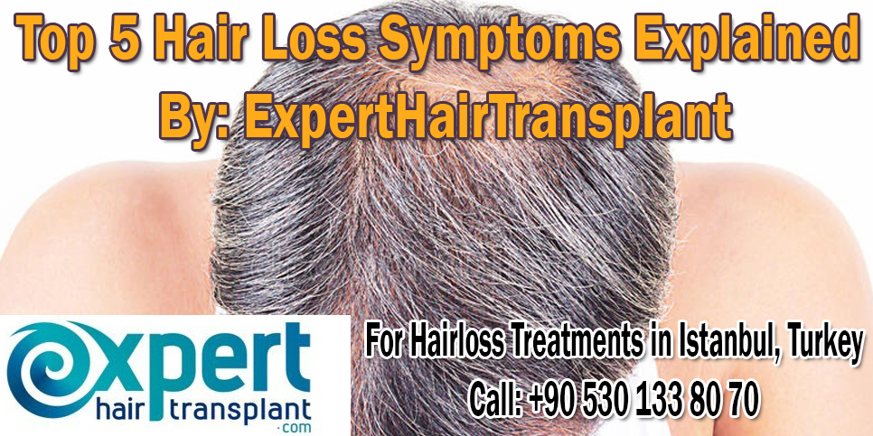 Top 5 Hair Loss Symptoms Explained by ExpertHairTransplant